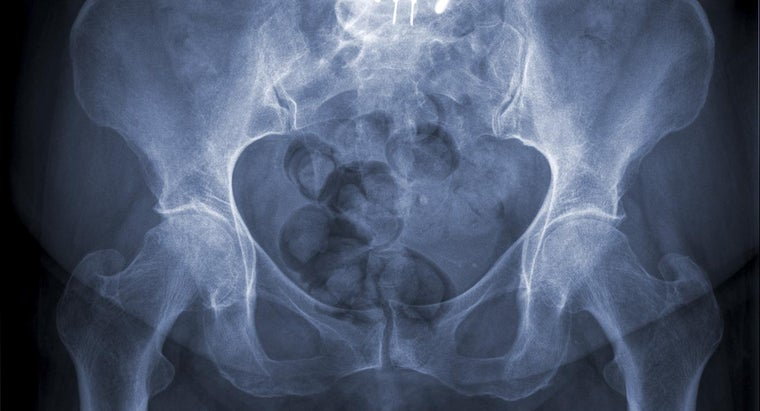 What Are the Symptoms of a Fractured Pelvis?