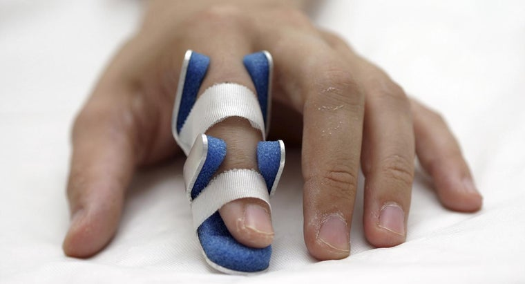 What Is the Treatment for a Finger Sprain?