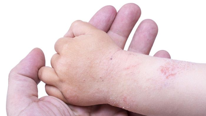 What are some common skin rashes in children?