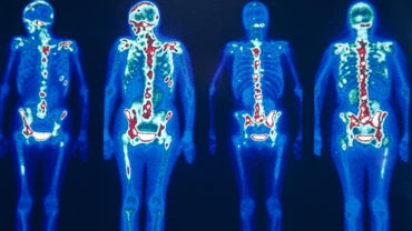 What Is a Nuclear Bone Scan?