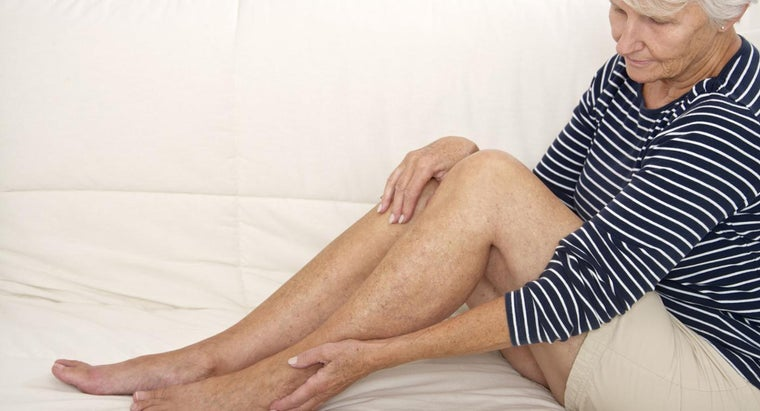 How Do You Treat a Blood Clot in Your Leg?
