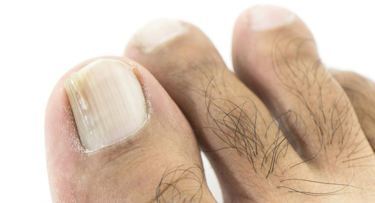 What Is Foot Fungus?
