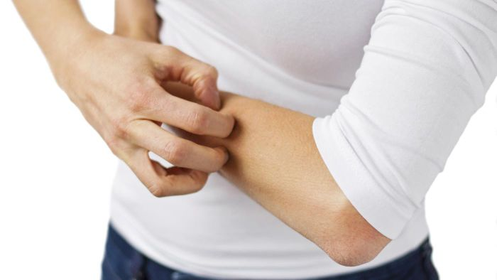 When is itching associated with a diabetes diagnosis?