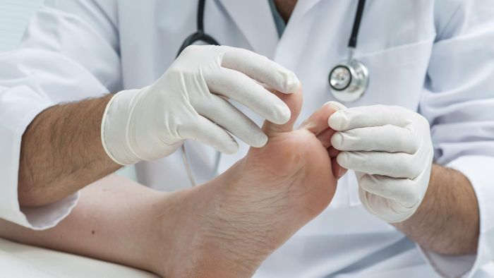 What Causes an Ingrown Toenail?