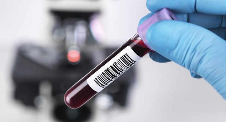 Where Do You Get a Blood Test Done?