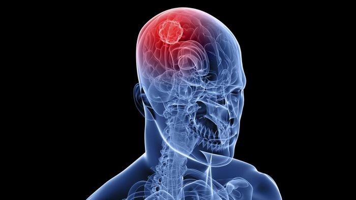 What Is the Life Expectancy of Someone With Brain Cancer?