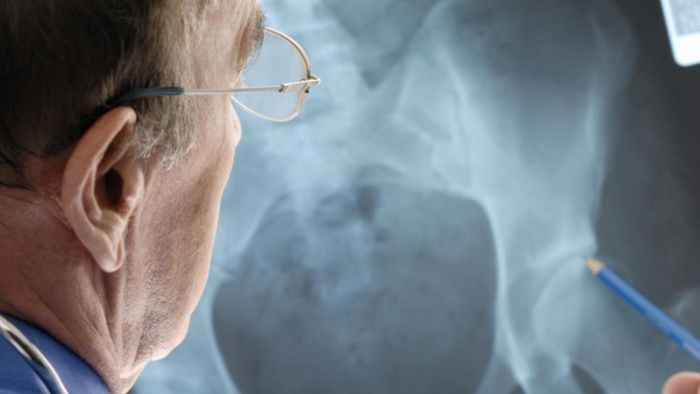 What Are Some Treatment Options for Severe Osteoporosis?