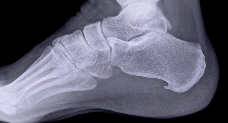What Are Some Home Treatments for Heel Spurs?