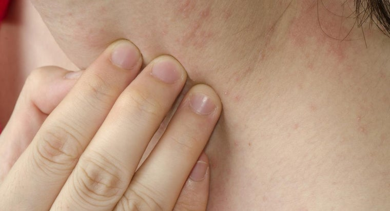 Where Can You Find Pictures That Accurately Depict a Skin Rash Caused by Allergies?