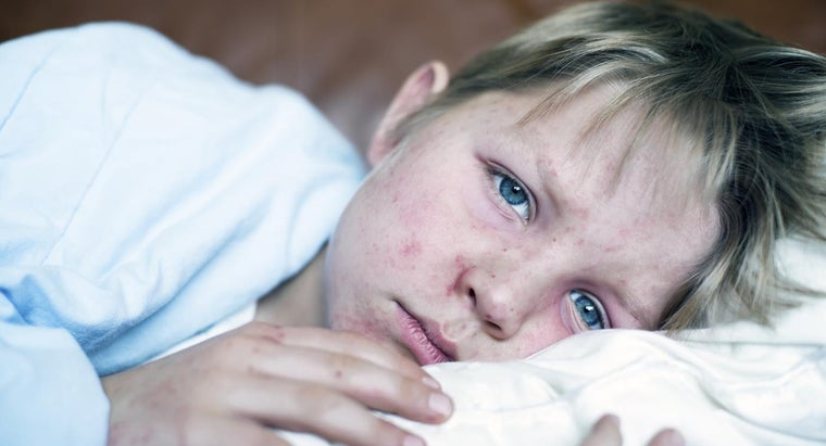 What Are the Signs and Symptoms of Measles?
