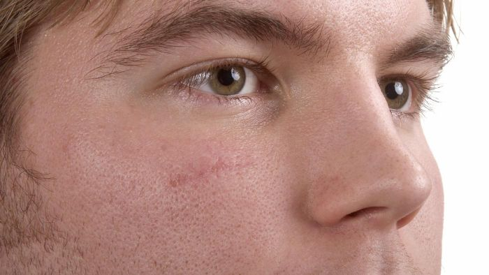 What Are Some Good Treatments for Scars on the Face?