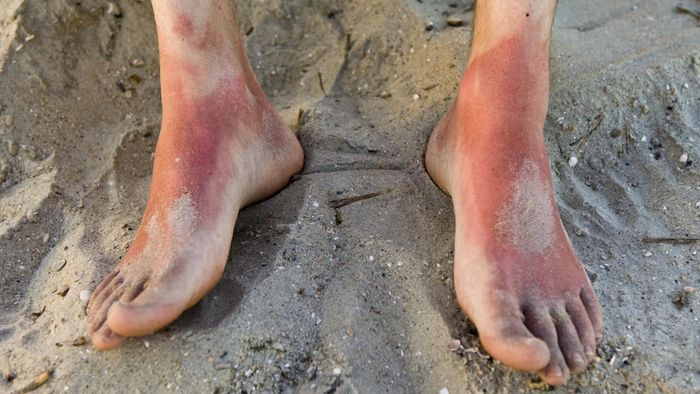 What Is the First Aid Treatment for First Degree Burns?