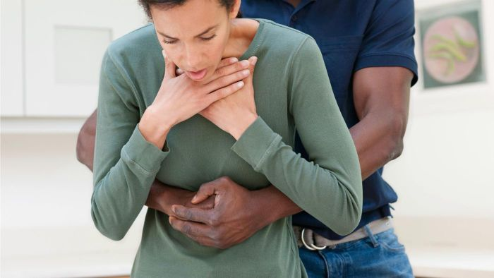 What Is the Heimlich Maneuver?