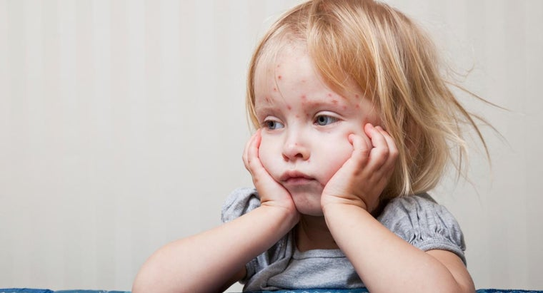 What Are Some Symptoms of Measles?