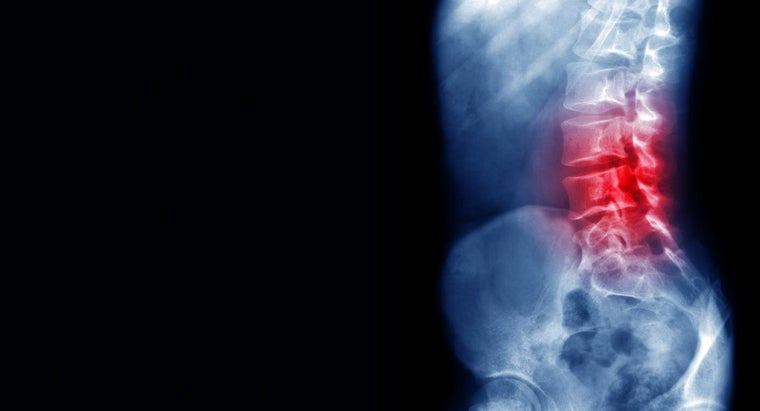 What Is the Recuperation Time for Surgery for Spinal Stenosis?