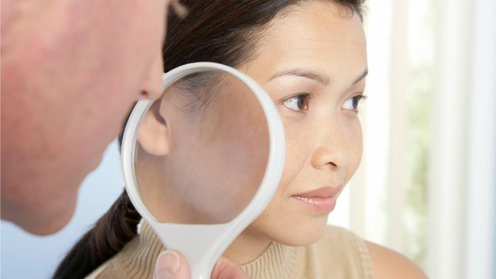 What are the main causes of facial spider veins?