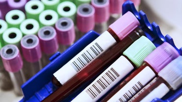 What Are Common Abbreviations on a Blood Test?
