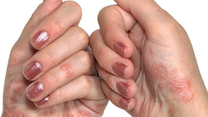 What Are Some Psoriasis Treatment Options?