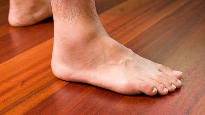 What Are Some Reasons for Swollen Ankles?