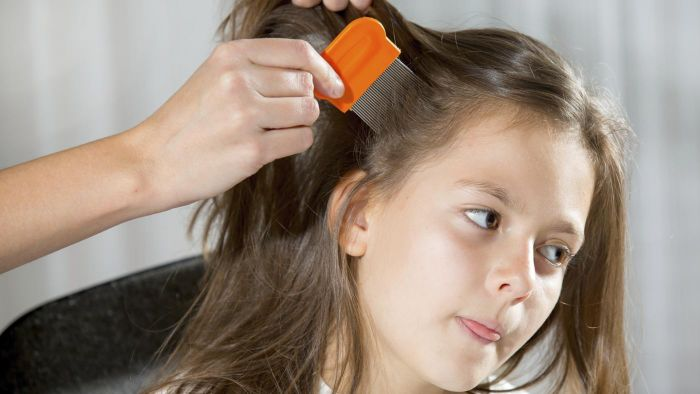 What Are Some Ways to Help Prevent Head Lice?