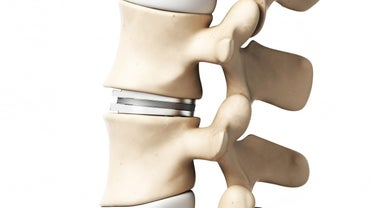 What Are the Treatment Options for Crushed Vertebrae?